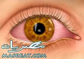 اعراض و علاج مرض التهاب الملتحمة الفيروسي في العين